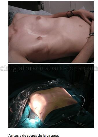 antes y despues cirugua deformidad torax