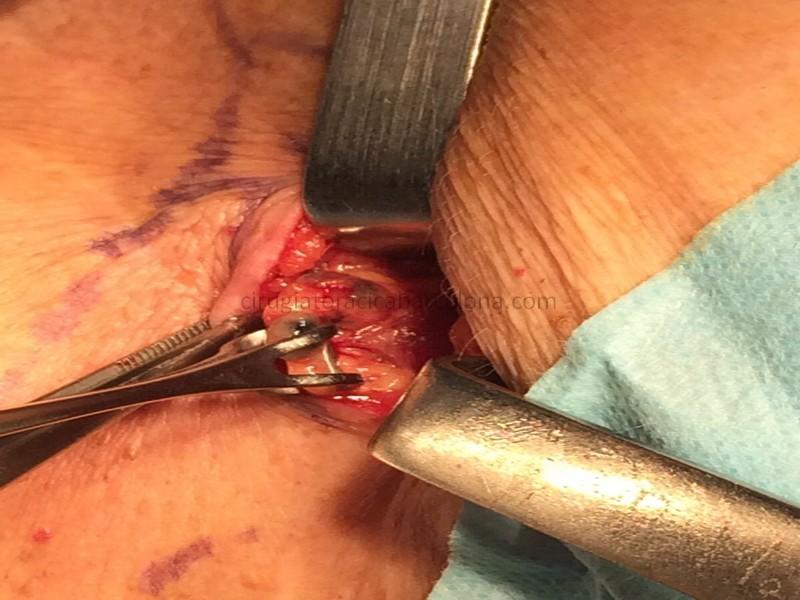biopsia supravicular (daniels)