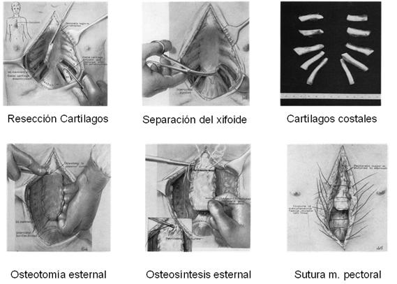 esquema deformidades torax