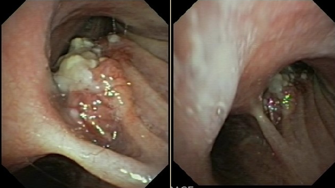 Fibrobroncoscopia (16.02.2010)